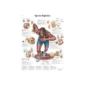 Lesioni in seguito ad attività sportiva - tavola 50x67 cm
