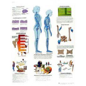 Osteoporosi - Tavola didattica laminata 50x67 cm