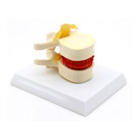 Simulatore vertebrale